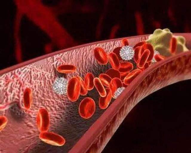 血流变分析仪